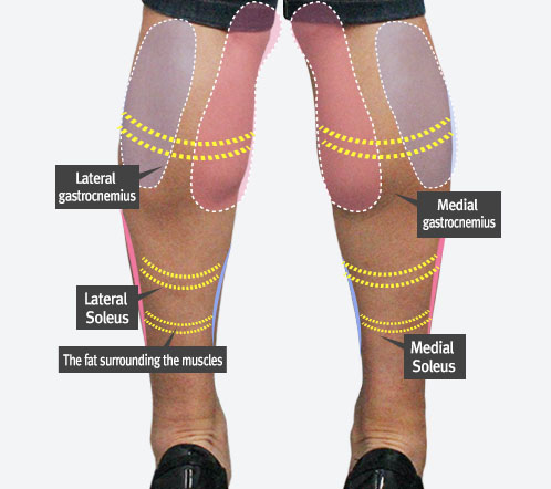 What is calf surgery?