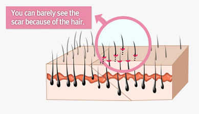 What is Forehead Reduction Surgery?